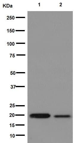Western blot - Anti-MATH5/ATOH7 antibody [EPR13935] (ab193356)
