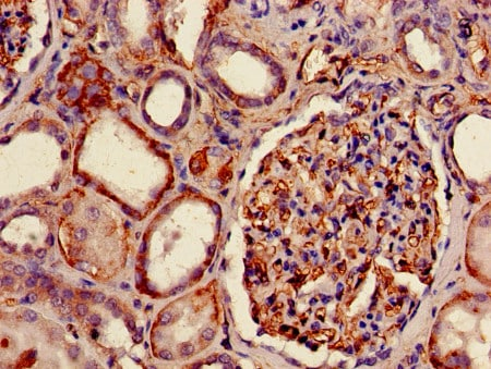 Immunohistochemistry (Formalin/PFA-fixed paraffin-embedded sections) - Anti-HLAB antibody - Extracellular domain (Biotin) (ab193408)