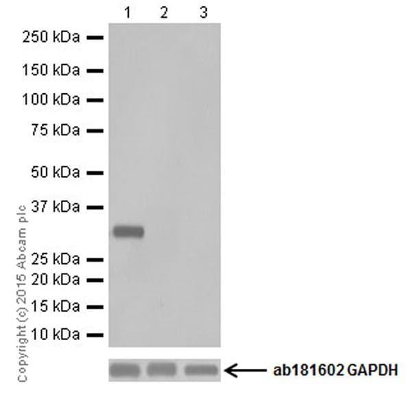 Western blot - Anti-UCP3 + UCP1 antibody [EPR19006] (ab193470)