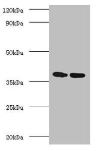 Western blot - Anti-TB Ag85A antibody (ab193499)