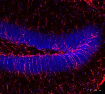 免疫组化(冰冻切片)-抗波形蛋白抗体[EPR3676] -BSA和无叠氮(AB193555)