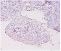Immunohistochemistry (Formalin/PFA-fixed paraffin-embedded sections) - Anti-MT1E antibody (ab193618)