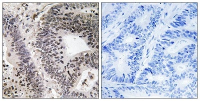 Immunohistochemistry (Formalin/PFA-fixed paraffin-embedded sections) - Anti-WWOX (phospho Y33) antibody (ab193624)