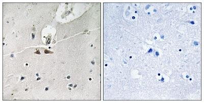 Immunohistochemistry (Formalin/PFA-fixed paraffin-embedded sections) - Anti-Ephrin B2 (phospho Y311) + Ephrin B3 (phospho Y318) + Ephrin B1 (phospho Y324) antibody (ab193634)