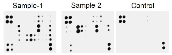 Typical image obtained from Rat AKI Antibody Array - Membrane C1 (7 Targets)- ab193654