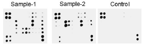 Typical images obtained with Abcam Human Cytokine Antibody Array - Membrane C6 (174 Targets) ab193657.