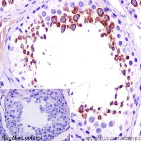 Immunohistochemistry (Formalin/PFA-fixed paraffin-embedded sections) - Anti-ADAM2 antibody [EP15281] (ab193668)