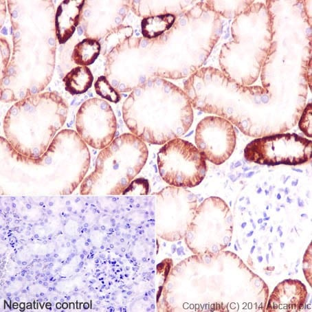 Immunohistochemistry (Formalin/PFA-fixed paraffin-embedded sections) - Anti-ATP1B1 antibody [EPR12195] (ab193669)