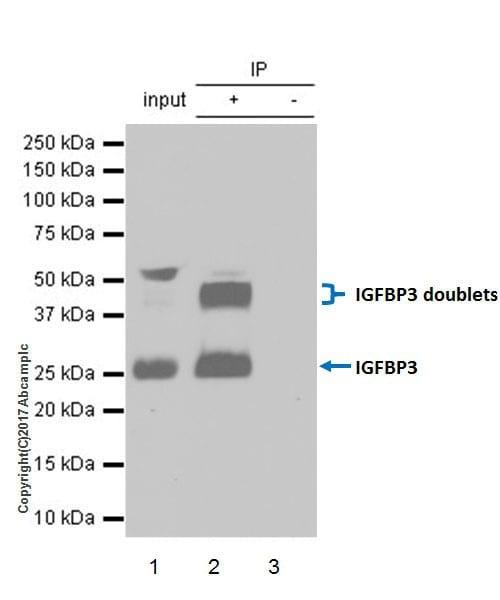 Immunoprecipitation - Anti-IGFBP3 antibody [EPR18680-153] (ab193910)