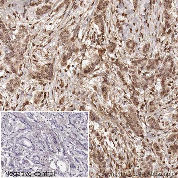 Immunohistochemistry (Formalin/PFA-fixed paraffin-embedded sections) - Anti-Cdk4 antibody [EPR4513-32-7] - Loading Control (HRP) (ab193968)
