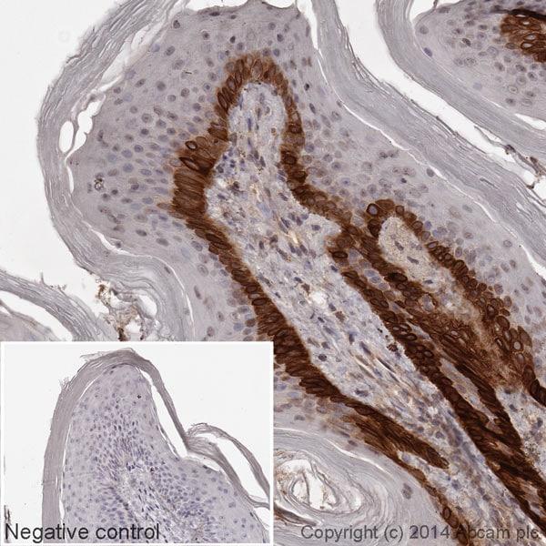 Immunohistochemistry (Formalin/PFA-fixed paraffin-embedded sections) - Anti-Cytokeratin 15 antibody [EPR1614Y] (HRP) (ab194067)