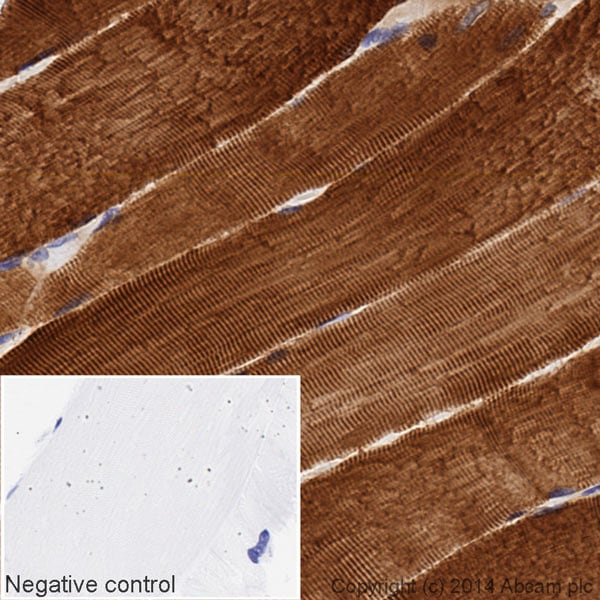 Immunohistochemistry (Formalin/PFA-fixed paraffin-embedded sections) - HRP Anti-Hsp27 antibody [EPR5477] (ab194079)