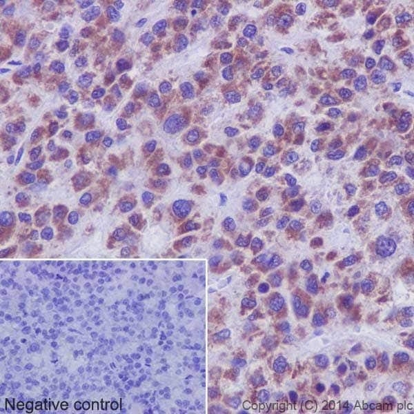Immunohistochemistry (Formalin/PFA-fixed paraffin-embedded sections) - Anti-PHKG1 antibody [EPR14812] (ab194112)