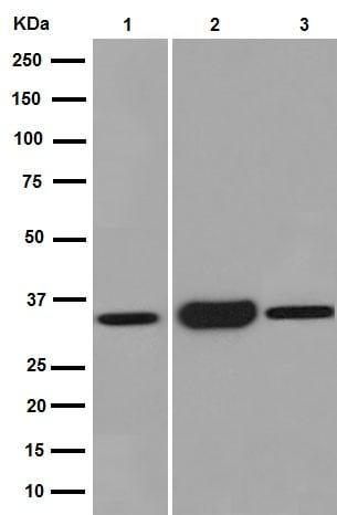 Western blot - Anti-SULT2A1/ST2 antibody [EPR16096] (ab194113)