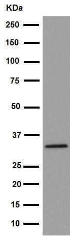 Western blot - Anti-NAT2/AT-2 antibody [EPR15856] (ab194114)
