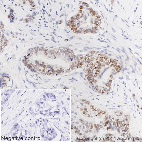 Immunohistochemistry (Formalin/PFA-fixed paraffin-embedded sections) - Anti-Estrogen Receptor alpha antibody [E115] (HRP) (ab194152)