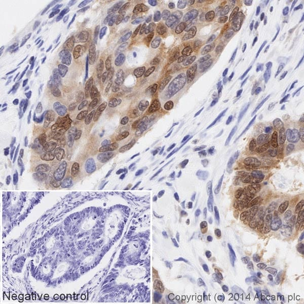 Immunohistochemistry (Formalin/PFA-fixed paraffin-embedded sections) - Anti-p27 KIP 1 antibody [Y236] (HRP) (ab194235)