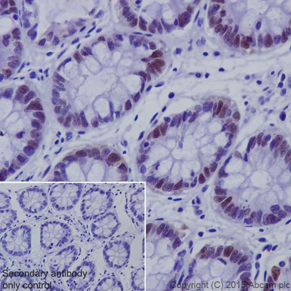 Immunohistochemistry (Formalin/PFA-fixed paraffin-embedded sections) - Anti-UHRF1 antibody [EPR18803] (ab194236)