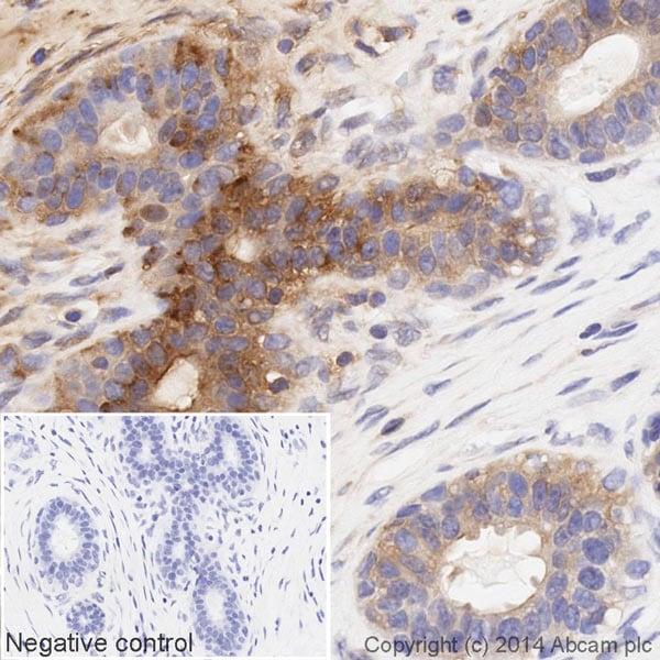 Immunohistochemistry (Formalin/PFA-fixed paraffin-embedded sections) - HRP Anti-MMP14 antibody [EP1264Y] (ab194242)
