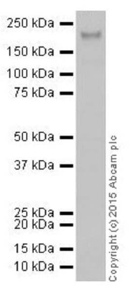 Western blot - Anti-KDM5A / Jarid1A / RBBP2 antibody [EPR18651] (ab194286)