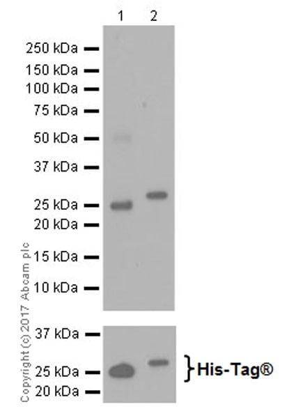 Western blot - Anti-KDM5C / Jarid1C / SMCX + KDM5D / Jarid1D / SMCY antibody [EPR18653] - ChIP Grade (ab194288)