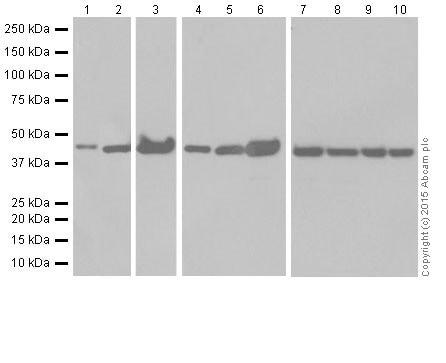 Western blot - Anti-KAT1 / HAT1 antibody [EPR18775] (ab194296)