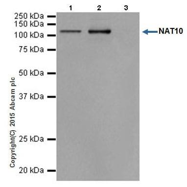 Immunoprecipitation - Anti-NAT10 antibody [EPR18663] (ab194297)