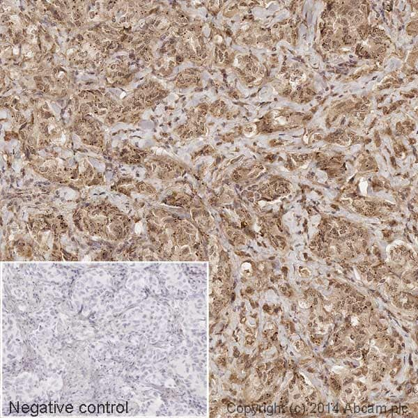 Immunohistochemistry (Formalin/PFA-fixed paraffin-embedded sections) - Anti-MMP9 antibody [EP1255Y] (HRP) (ab194316)