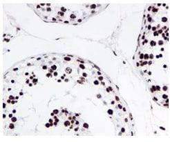 Immunohistochemistry (Formalin/PFA-fixed paraffin-embedded sections) - Anti-Histone H4 (acetyl K16) antibody [EPR1004] - BSA and Azide free (ab194352)