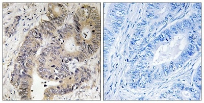 Immunohistochemistry (Formalin/PFA-fixed paraffin-embedded sections) - Anti-CAD/BM1 (phospho T456) antibody (ab194534)
