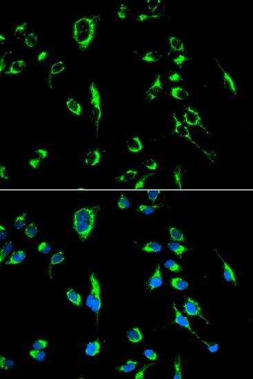 Immunocytochemistry/ Immunofluorescence - Anti-APOBEC3G/A3G antibody (ab194581)