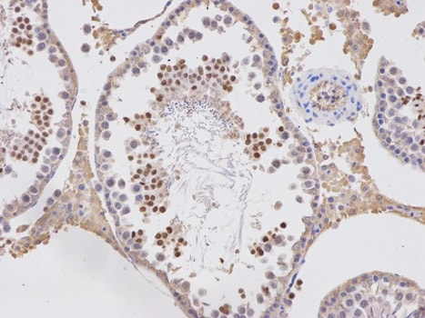 Immunohistochemistry (Formalin/PFA-fixed paraffin-embedded sections) - Anti-APOBEC3G/A3G antibody (ab194581)
