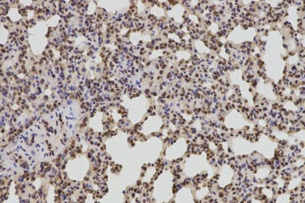 Immunohistochemistry (Formalin/PFA-fixed paraffin-embedded sections) - Anti-Bcl-2 antibody (ab194583)