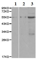 Western blot - Anti-CARD8 antibody - N-terminal (ab194585)