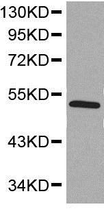 Western blot - Anti-SMAD5 antibody - C-terminal (ab194661)