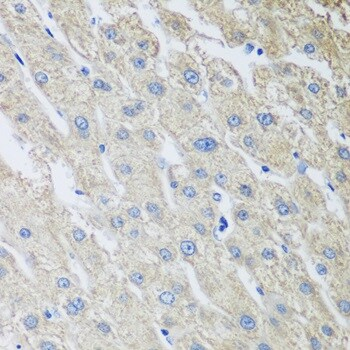 Immunohistochemistry (Formalin/PFA-fixed paraffin-embedded sections) - Anti-MLKL antibody - N-terminal (ab194699)