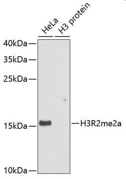 Western blot - Anti-Histone H3 (asymmetric di methyl R2) antibody (ab194706)