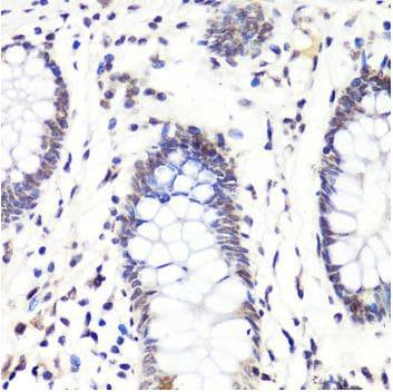 Immunohistochemistry (Formalin/PFA-fixed paraffin-embedded sections) - Anti-Histone H3 (asymmetric di methyl R2) antibody (ab194706)