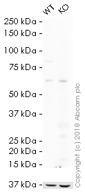 Western blot - HRP Anti-IKK beta antibody [Y466] (ab194713)
