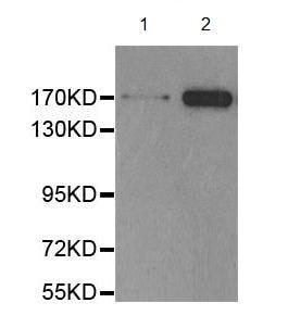 Western blot - Anti-EGFR (phospho T654) antibody (ab194733)