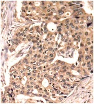 Immunohistochemistry (Formalin/PFA-fixed paraffin-embedded sections) - Anti-Paxillin (phospho Y118) antibody (ab194738)