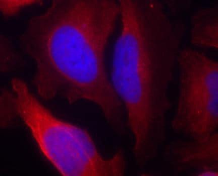 Immunocytochemistry/ Immunofluorescence - Anti-Tyrosine Hydroxylase (phospho S19) antibody (ab194785)