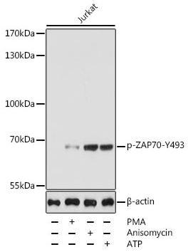 Western blot - Anti-ZAP70 (phospho Y493) antibody (ab194800)