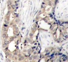 Immunohistochemistry (Formalin/PFA-fixed paraffin-embedded sections) - Anti-c Abl (phospho Y412) antibody (ab194870)
