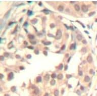 Immunohistochemistry (Formalin/PFA-fixed paraffin-embedded sections) - Anti-Cdk6 (phospho Y13) antibody (ab194871)