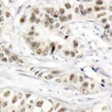 Immunohistochemistry (Formalin/PFA-fixed paraffin-embedded sections) - Anti-BRCA1 (phospho S1524) antibody (ab194872)