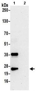 Immunoprecipitation - Anti-PGRMC1 antibody - C-terminal (ab194879)
