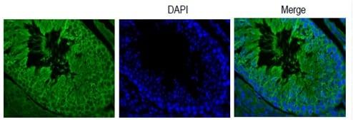 Immunohistochemistry (Paraffin-embedded sections) - Anti-PMIS2 antibody (ab194880)