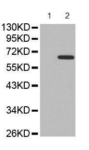 Western blot - Anti-NF-kB p65 (phospho T435) antibody (ab194932)