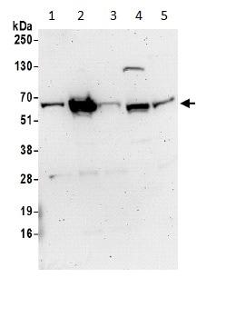Western blot - Anti-EPI64 antibody - C-terminal (ab194945)